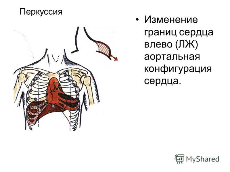 Изменение границ сердца влево (ЛЖ) аортальная конфигурация сердца. Перкуссия