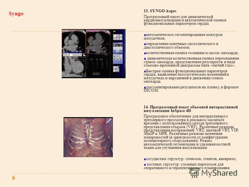 Syngo 13. SYNGO Argus Программный пакет для динамической кардиовизуализации и автоматической оценки функциональных параметров сердца. автоматическое сегментирование контуров желудочков; определение конечных систолического и диастолического объемов; к