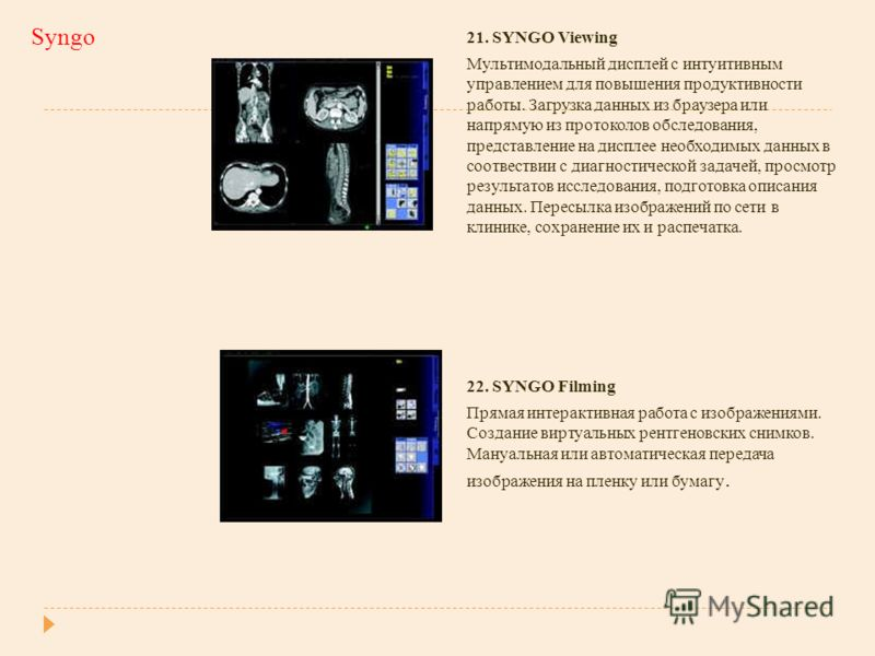 Syngo 21. SYNGO Viewing Мультимодальный дисплей с интуитивным управлением для повышения продуктивности работы. Загрузка данных из браузера или напрямую из протоколов обследования, представление на дисплее необходимых данных в соотвествии с диагностич