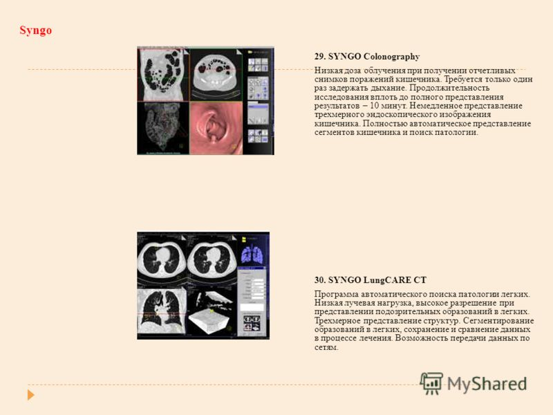 Syngo 29. SYNGO Colonography Низкая доза облучения при получении отчетливых снимков поражений кишечника. Требуется только один раз задержать дыхание. Продолжительность исследования вплоть до полного представления результатов – 10 минут. Немедленное п
