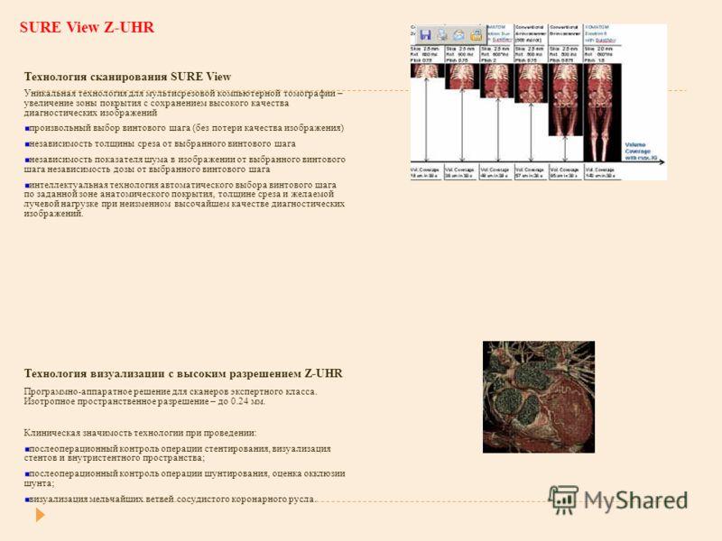 SURE View Z-UHR Технология сканирования SURE View Уникальная технология для мультисрезовой компьютерной томографии – увеличение зоны покрытия с сохранением высокого качества диагностических изображений произвольный выбор винтового шага (без потери ка