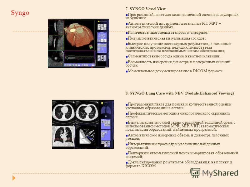 Syngo 7. SYNGO Vessel View Программный пакет для количественной оценки васкулярных нарушений Автоматический инструмент для анализа КТ, МРТ – ангиографических данных. Количественная оценка стенозов и аневризм; Полуавтоматическая визуализация сосудов;