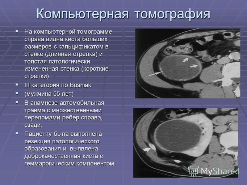 Компьютерная томография На компьютерной томограмме справа видна киста больших размеров с кальцификатом в стенке (длинная стрелка) и толстая патологически измененная стенка (короткие стрелки) На компьютерной томограмме справа видна киста больших разме