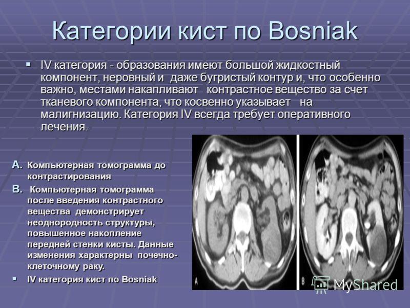 Категории кист по Bosniak IV категория - образования имеют большой жидкостный компонент, неровный и даже бугристый контур и, что особенно важно, местами накапливают контрастное вещество за счет тканевого компонента, что косвенно указывает на малигниз