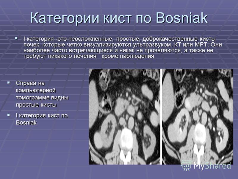 Категории кист по Bosniak I категория -это неосложненные, простые, доброкачественные кисты почек, которые четко визуализируются ультразвуком, КТ или МРТ. Они наиболее часто встречающиеся и никак не проявляются, а также не требуют никакого лечения кро