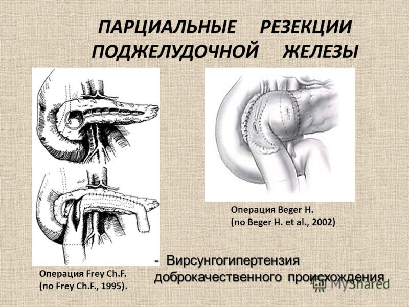 ПАРЦИАЛЬНЫЕ РЕЗЕКЦИИ ПОДЖЕЛУДОЧНОЙ ЖЕЛЕЗЫ Операция Frey Ch.F. (по Frey Ch.F., 1995). Операция Beger H. (по Beger H. et al., 2002) - Вирсунгогипертензия доброкачественного происхождения