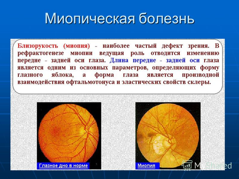 Миопическая болезнь