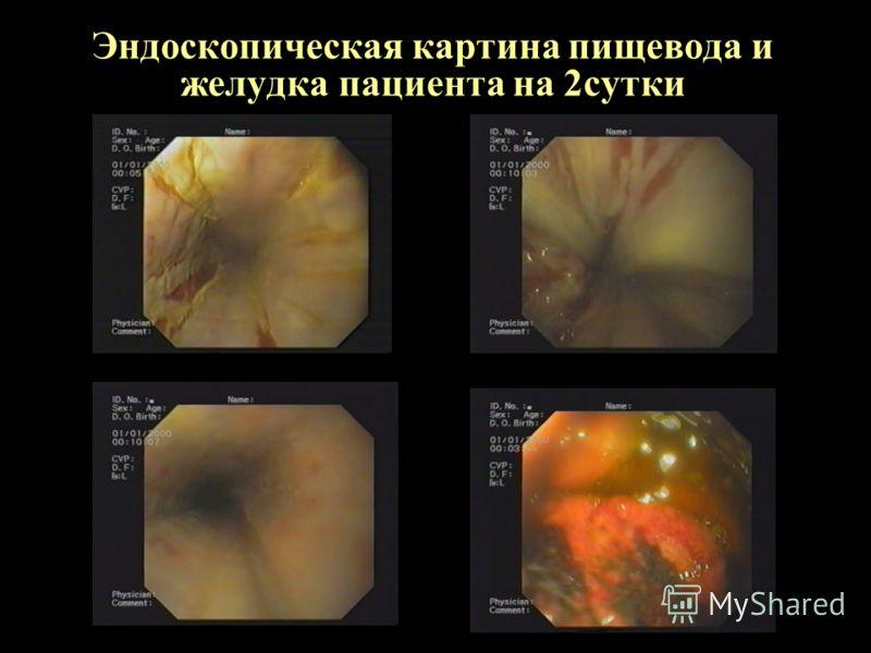 Эндоскопическая картина пищевода и желудка пациента на 2сутки