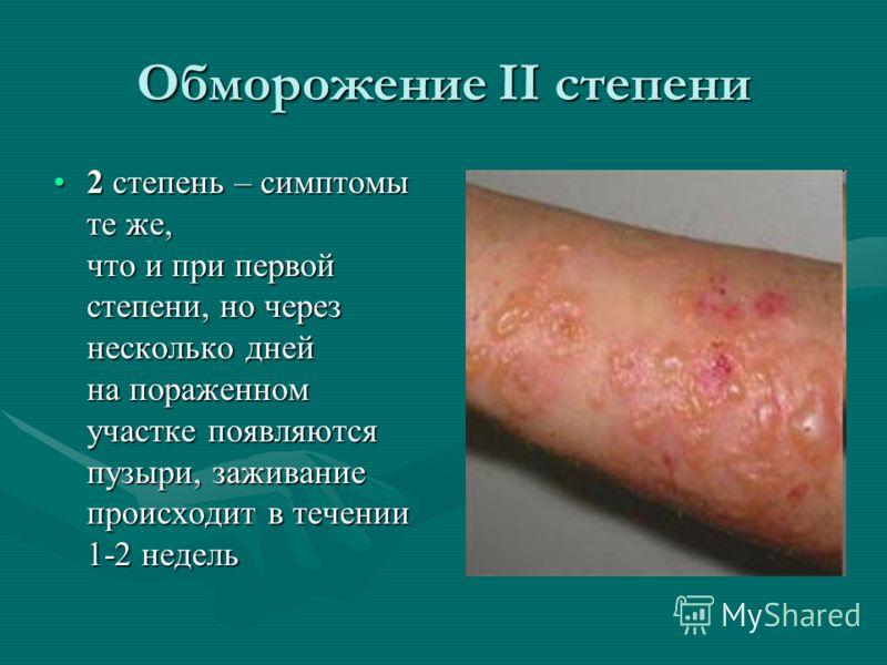 Обморожение II степени 2 степень – симптомы те же, что и при первой степени, но через несколько дней на пораженном участке появляются пузыри, заживание происходит в течении 1-2 недель2 степень – симптомы те же, что и при первой степени, но через неск