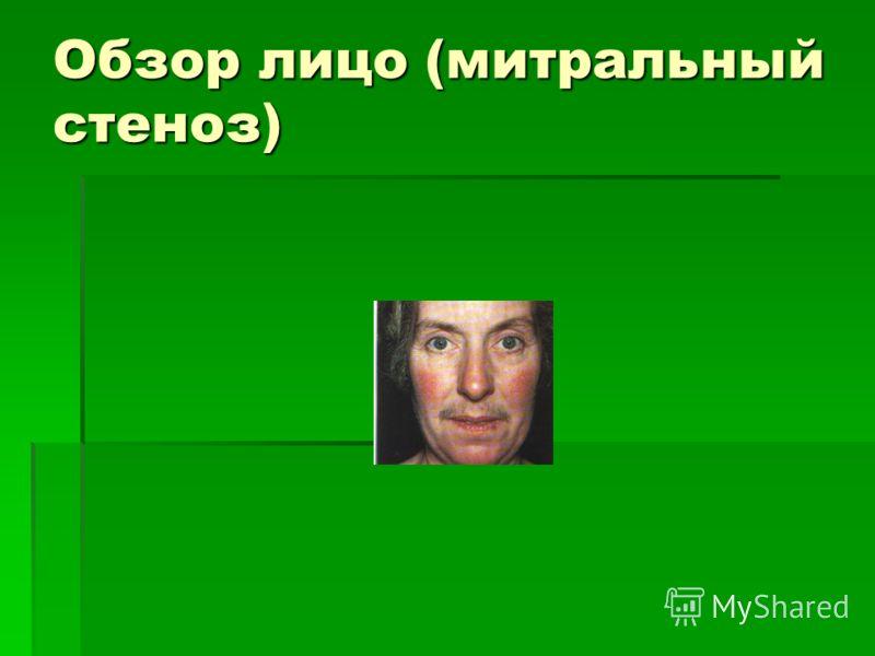 Обзор лицо (митральный стеноз)