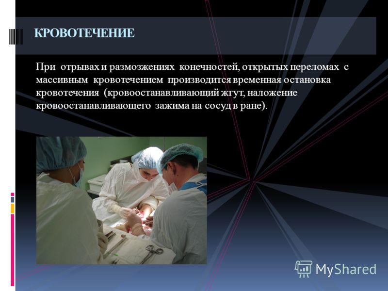 При отрывах и размозжениях конечностей, открытых переломах с массивным кровотечением производится временная остановка кровотечения (кровоостанавливающий жгут, наложение кровоостанавливающего зажима на сосуд в ране). КРОВОТЕЧЕНИЕ