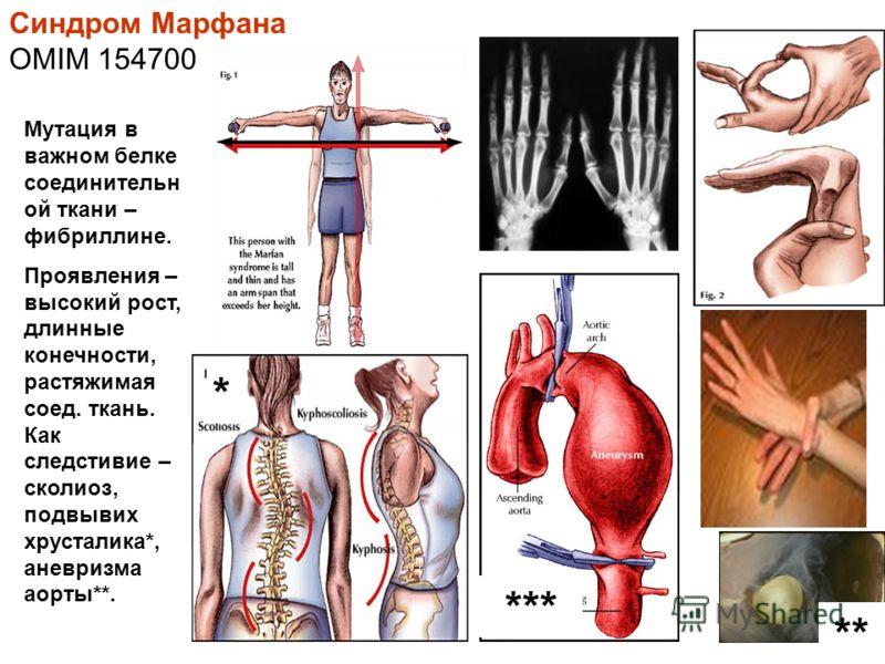 Синдром Марфана OMIM 154700 Мутация в важном белке соединительн ой ткани – фибриллине. Проявления – высокий рост, длинные конечности, растяжимая соед. ткань. Как следстивие – сколиоз, подвывих хрусталика*, аневризма аорты**. *** ** *
