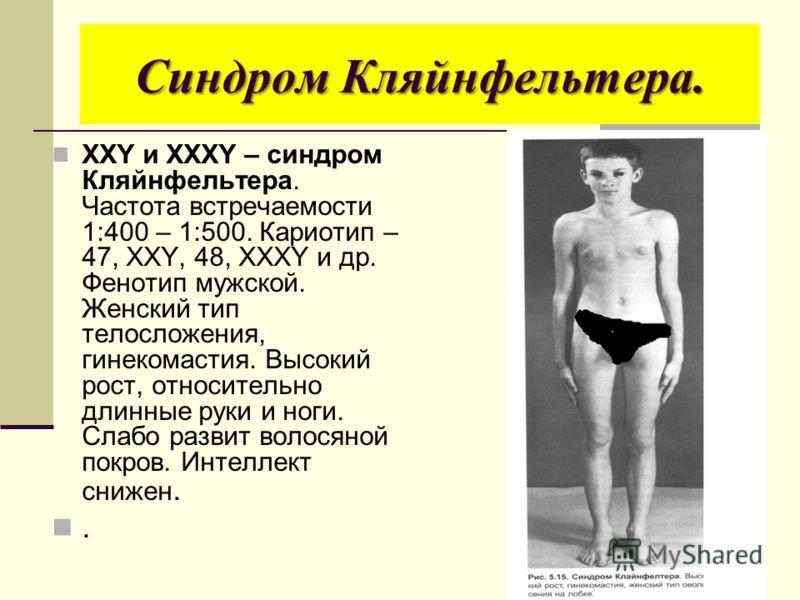 Синдром Кляйнфельтера. ХХY и XXXY – синдром Кляйнфельтера. Частота встречаемости 1:400 – 1:500. Кариотип – 47, XXY, 48, XXXY и др. Фенотип мужской. Женский тип телосложения, гинекомастия. Высокий рост, относительно длинные руки и ноги. Слабо развит в