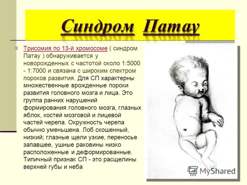 Трисомия по 13-й хромосоме ( синдром Патау ) обнаруживается у новорожденных с частотой около 1:5000 - 1:7000 и связана с широким спектром пороков развития. Для СП характерны множественные врожденные пороки развития головного мозга и лица. Это группа