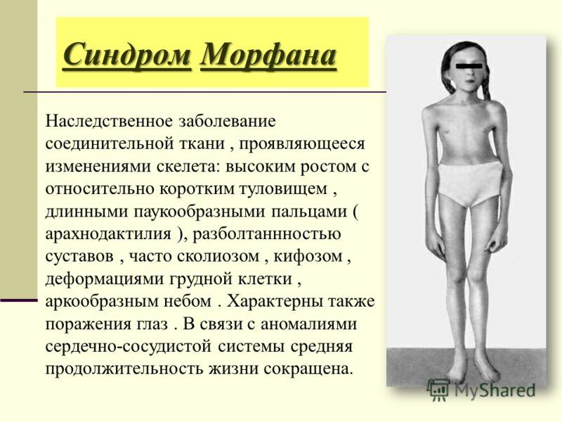 Синдром Морфана Наследственное заболевание соединительной ткани, проявляющееся изменениями скелета: высоким ростом с относительно коротким туловищем, длинными паукообразными пальцами ( арахнодактилия ), разболтаннностью суставов, часто сколиозом, киф
