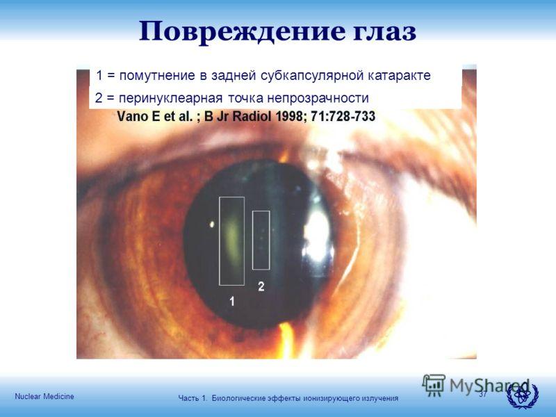 Nuclear Medicine 37 Повреждение глаз Часть 1. Биологические эффекты ионизирующего излучения 1 = помутнение в задней субкапсулярной катаракте 2 = перинуклеарная точка непрозрачности