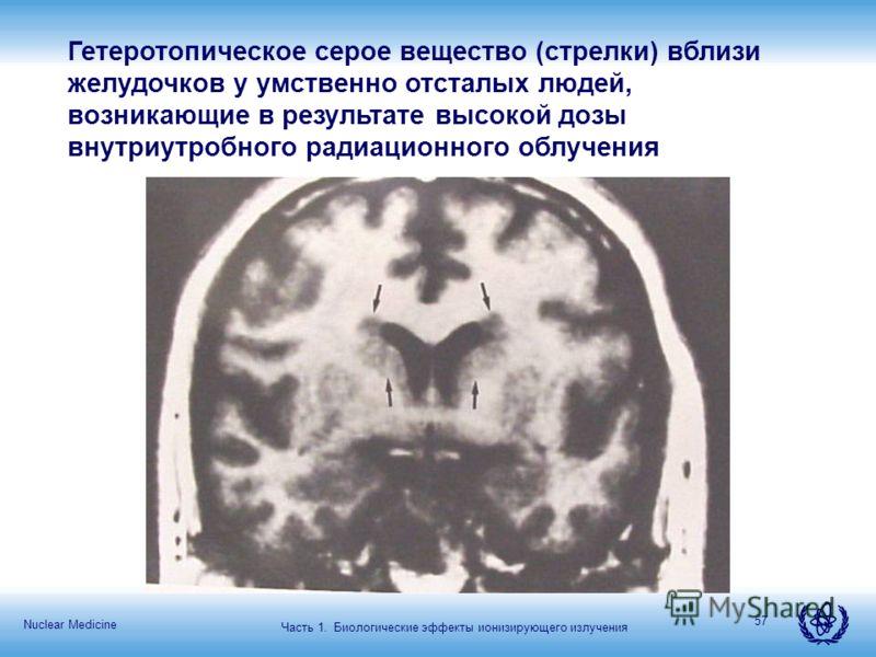 Nuclear Medicine 57 Гетеротопическое серое вещество (стрелки) вблизи желудочков у умственно отсталых людей, возникающие в результате высокой дозы внутриутробного радиационного облучения Часть 1. Биологические эффекты ионизирующего излучения