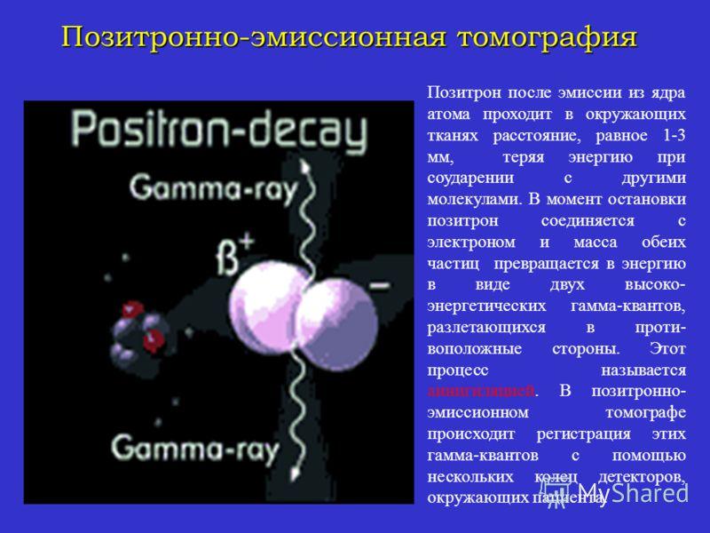 Томография Позитронная Эмиссионная фото