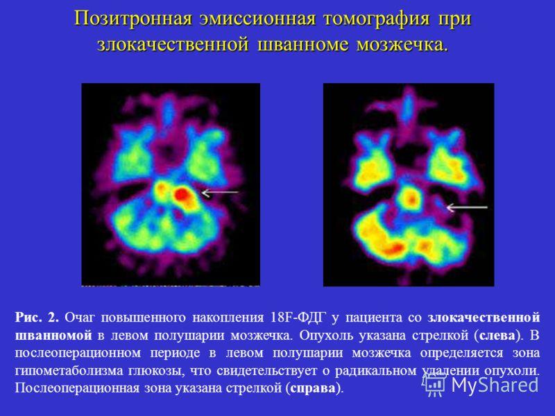 Позитронная эмиссионная томография при злокачественной шванноме мозжечка. Рис. 2. Очаг повышенного накопления 18F-ФДГ у пациента со злокачественной шванномой в левом полушарии мозжечка. Опухоль указана стрелкой (слева). В послеоперационном периоде в