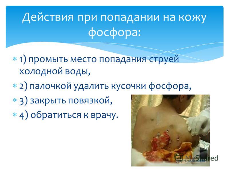 1) промыть место попадания струей холодной воды, 2) палочкой удалить кусочки фосфора, 3) закрыть повязкой, 4) обратиться к врачу. Действия при попадании на кожу фосфора: