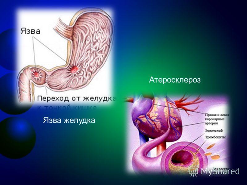 Язва желудка Атеросклероз