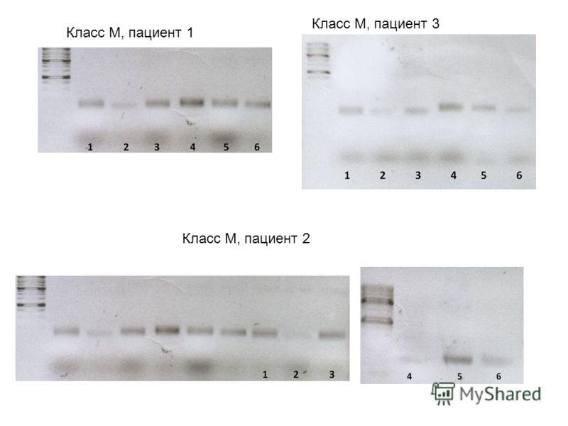 Класс М, пациент 1 Класс М, пациент 2 Класс М, пациент 3