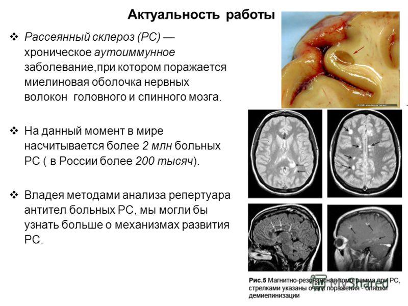 Рассеянный склероз (РС) хроническое аутоиммунное заболевание,при котором поражается миелиновая оболочка нервных волокон головного и спинного мозга. На данный момент в мире насчитывается более 2 млн больных РС ( в России более 200 тысяч). Владея метод