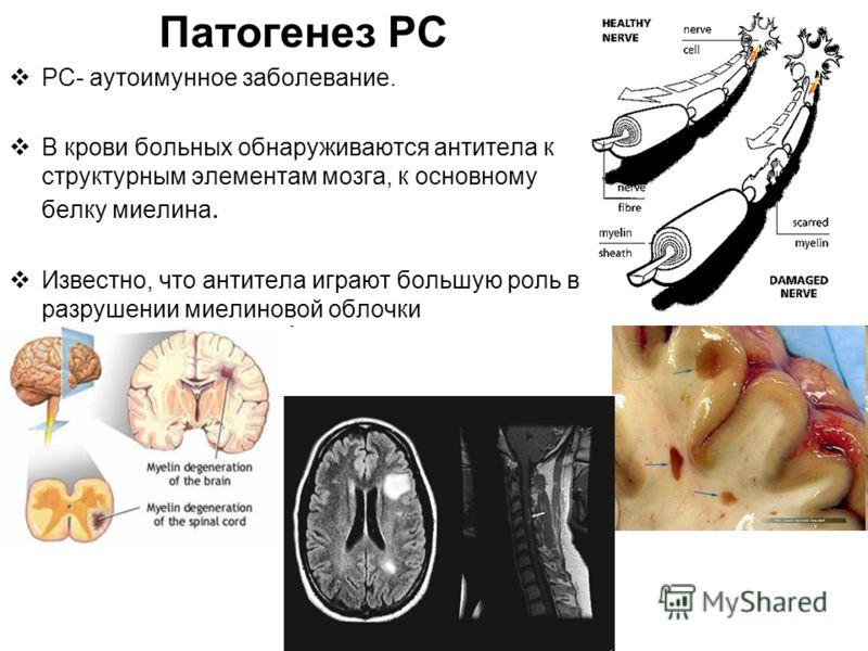 Патогенез РС РС- аутоимунное заболевание. В крови больных обнаруживаются антитела к структурным элементам мозга, к основному белку миелина. Известно, что антитела играют большую роль в разрушении миелиновой облочки