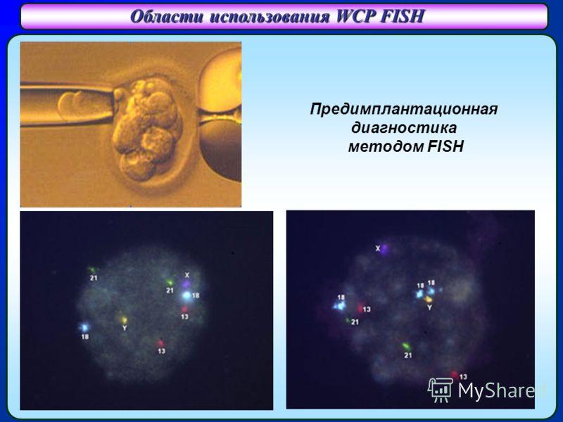 Области использования WCP FISH Предимплантационная диагностика методом FISH