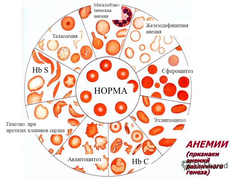 Сфероцитоз фото