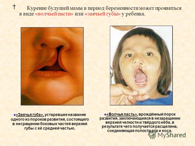 Курение будущей мамы в период беременности может проявиться в виде «волчьей пасти» или «заячьей губы» у ребенка. «Волчья пасть», врождённый порок развития, заключающийся в незаращении верхней челюсти и твёрдого нёба, в результате чего получается расщ