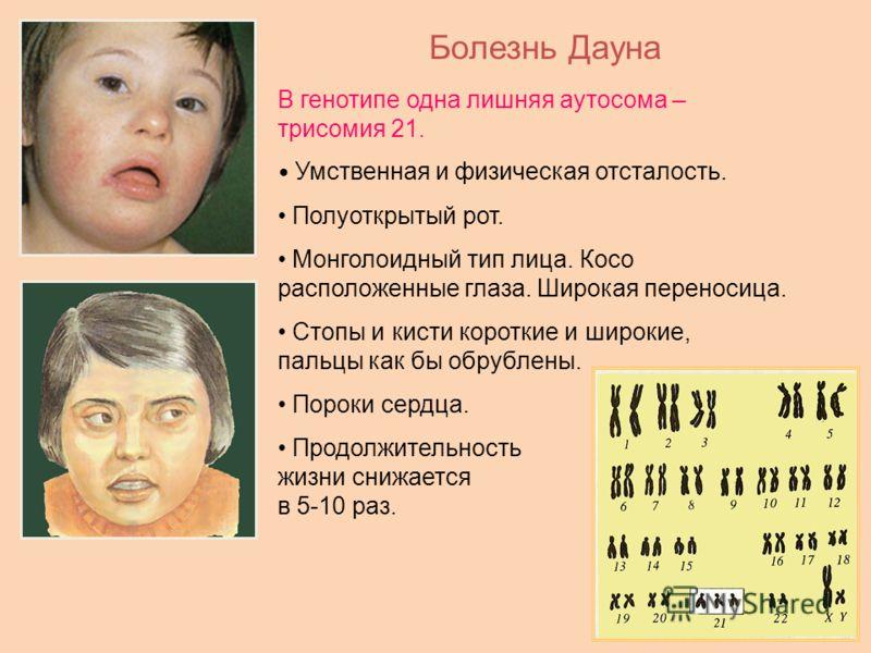 Болезнь Дауна В генотипе одна лишняя аутосома – трисомия 21. Умственная и физическая отсталость. Полуоткрытый рот. Монголоидный тип лица. Косо расположенные глаза. Широкая переносица. Стопы и кисти короткие и широкие, пальцы как бы обрублены. Пороки