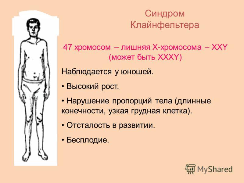 Синдром Клайнфельтера 47 хромосом – лишняя Х-хромосома – ХХY (может быть ХХХY) Наблюдается у юношей. Высокий рост. Нарушение пропорций тела (длинные конечности, узкая грудная клетка). Отсталость в развитии. Бесплодие.