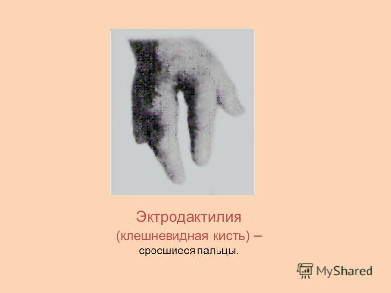 Эктродактилия (клешневидная кисть) – сросшиеся пальцы.