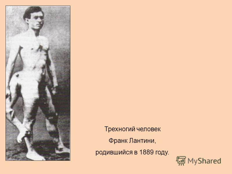 Трехногий человек Франк Лантини, родившийся в 1889 году.