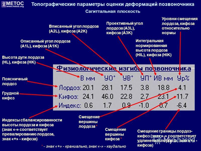Топографические параметры оценки деформаций позвоночника Сагиттальная плоскость Поясничный лордоз Грудной кифоз Индексы сбалансированности высоты лордоза и кифоза (знак «-» соответствует превалированию лордоза, знак «+» - кифоза) Высота дуги лордоза