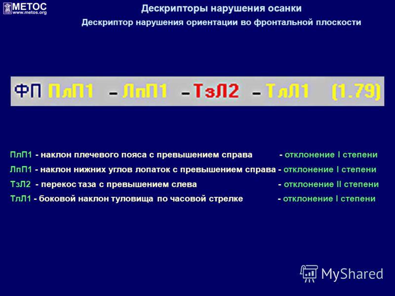 Дескрипторы нарушения осанки Дескриптор нарушения ориентации во фронтальной плоскости ПлП1 - наклон плечевого пояса с превышением справа - отклонение I степени ЛпП1 - наклон нижних углов лопаток с превышением справа - отклонение I степени ТзЛ2 - пере
