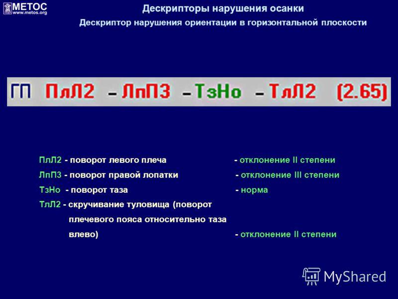 Дескрипторы нарушения осанки Дескриптор нарушения ориентации в горизонтальной плоскости ПлЛ2 - поворот левого плеча - отклонение II степени ЛпП3 - поворот правой лопатки - отклонение III степени ТзHo - поворот таза - норма ТлЛ2 - скручивание туловища