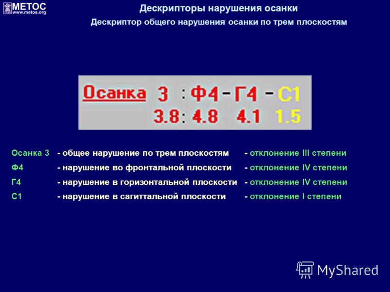 Дескрипторы нарушения осанки Дескриптор общего нарушения осанки по трем плоскостям Осанка 3- общее нарушение по трем плоскостям- отклонение III степени Ф4- нарушение во фронтальной плоскости- отклонение IV степени Г4- нарушение в горизонтальной плоск
