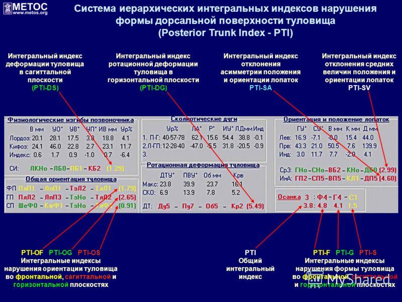 PTI Общий интегральный индекс PTI-OF PTI-OG PTI-OS Интегральные индексы нарушения ориентации туловища во фронтальной, сагиттальной и горизонтальной плоскостях Интегральный индекс отклонения средних величин положения и ориентации лопаток PTI-SV PTI-F