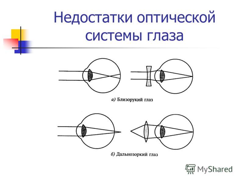 Недостатки оптической системы глаза