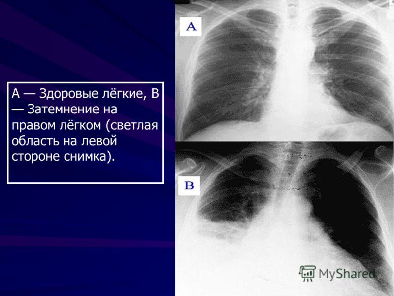 А Здоровые лёгкие, В Затемнение на правом лёгком (светлая область на левой стороне снимка).