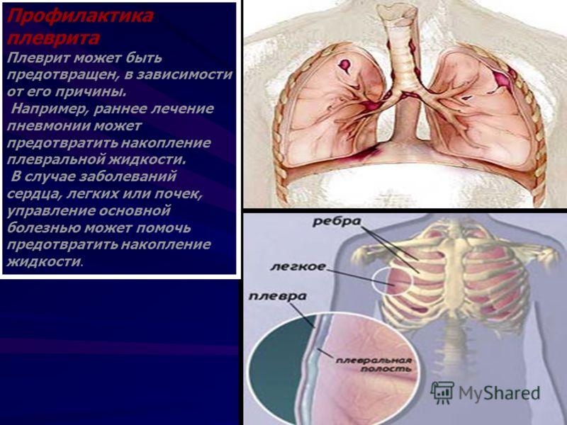 Профилактика плеврита Плеврит может быть предотвращен, в зависимости от его причины. Например, раннее лечение пневмонии может предотвратить накопление плевральной жидкости. В случае заболеваний сердца, легких или почек, управление основной болезнью м