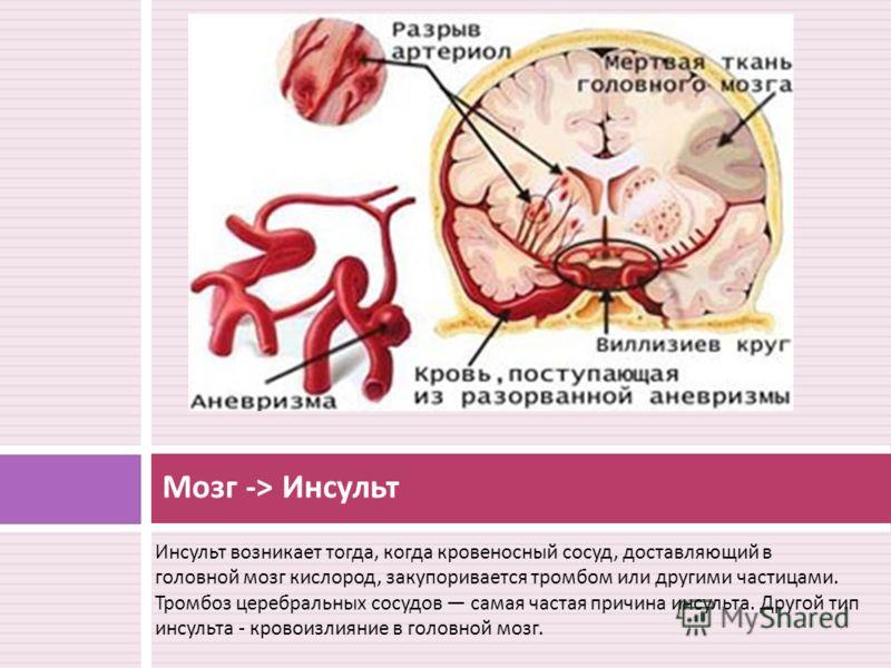 Инсульт возникает тогда, когда кровеносный сосуд, доставляющий в головной мозг кислород, закупоривается тромбом или другими частицами. Тромбоз церебральных сосудов самая частая причина инсульта. Другой тип инсульта - кровоизлияние в головной мозг. Мо