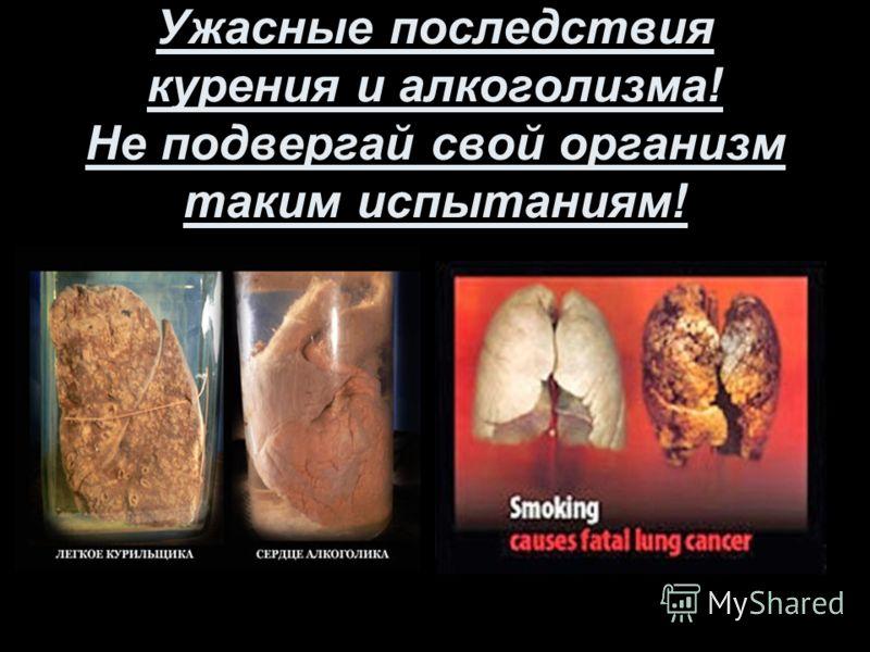 Ужасные последствия курения и алкоголизма! Не подвергай свой организм таким испытаниям!