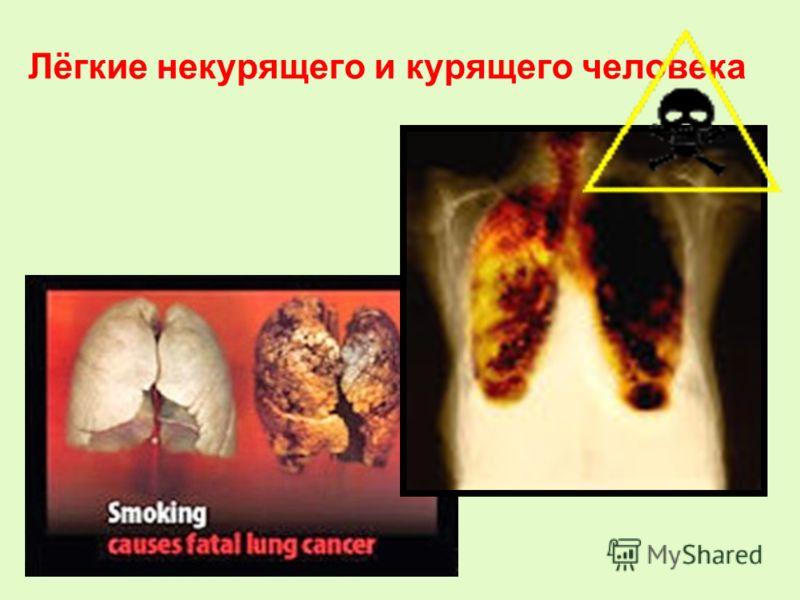 Лёгкие некурящего и курящего человека О вреде курения