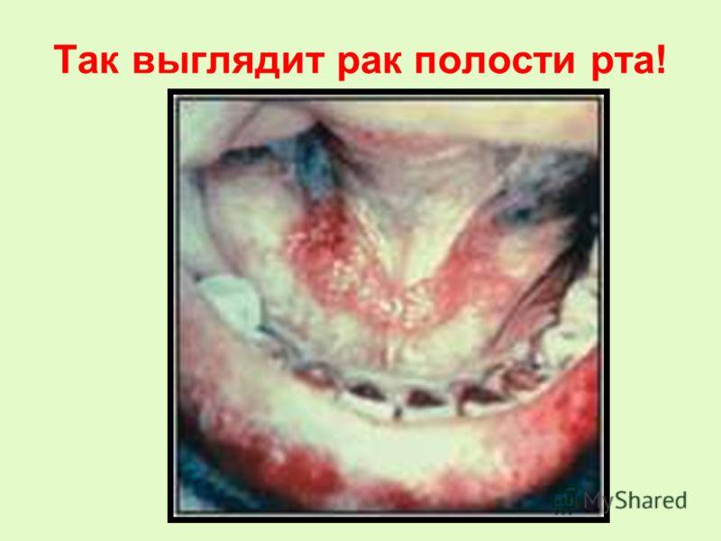 Так выглядит рак полости рта!