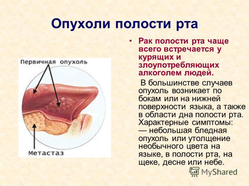 Опухоли полости рта Рак полости рта чаще всего встречается у курящих и злоупотребляющих алкоголем людей. В большинстве случаев опухоль возникает по бокам или на нижней поверхности языка, а также в области дна полости рта. Характерные симптомы: неболь