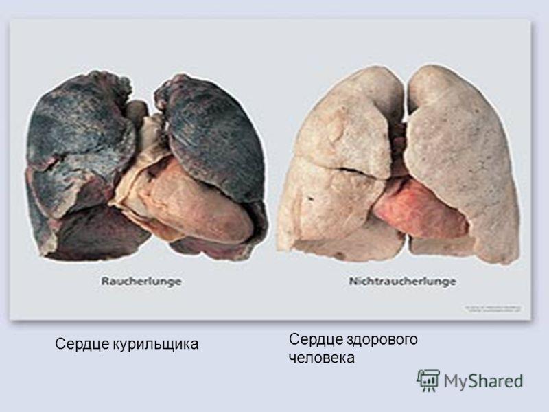 Сердце курильщика Сердце здорового человека