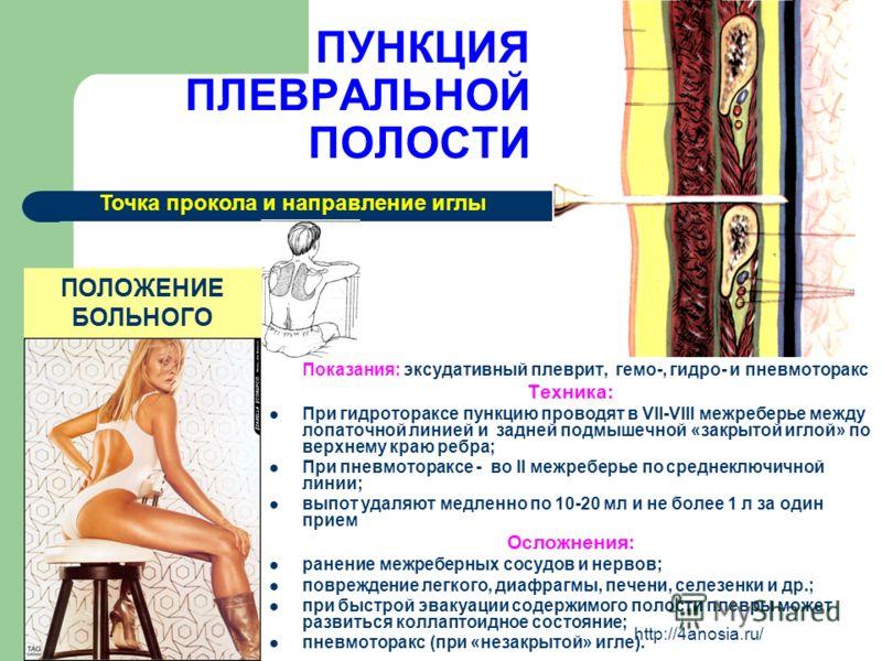 ПУНКЦИЯ ПЛЕВРАЛЬНОЙ ПОЛОСТИ Показания: эксудативный плеврит, гемо-, гидро- и пневмоторакс Техника: При гидротораксе пункцию проводят в VII-VIII межреберье между лопаточной линией и задней подмышечной «закрытой иглой» по верхнему краю ребра; При пневм